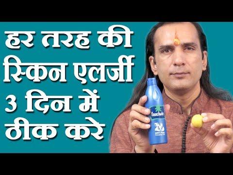 स्किन एलर्जी का इलाज Skin Allergy Medicine – How To Cure Skin Allergy at Home by Sachin Goyal