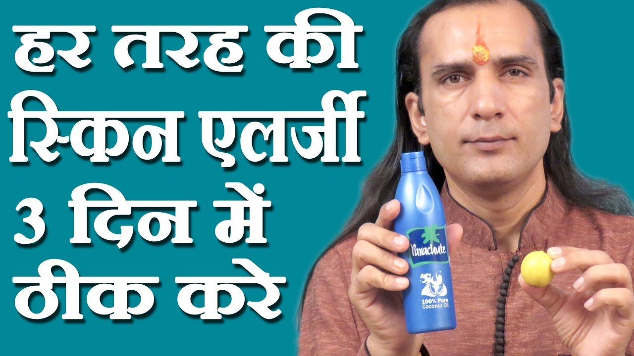 स्किन एलर्जी का घरेलू नुस्खा How To Cure Skin Allergy in Hindi by Sachin  Goyal