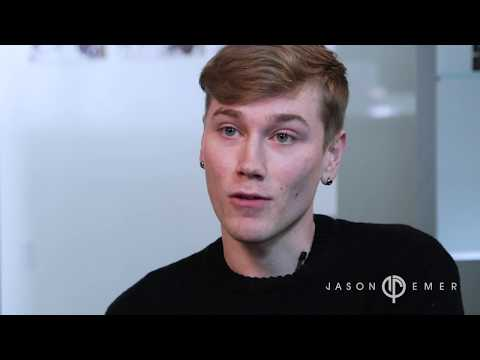 CO2 Laser Resurfacing for Acne Scars By Jason Emer, MD | Male With Facial Scarring and Pigmentation