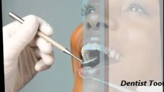 A Few Simple Tips For Great Dentist Thumbnail