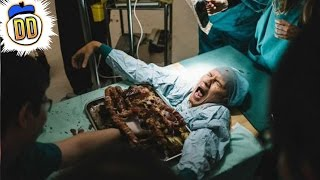 9 Nightmare Surgeries That Went Horribly Wrong