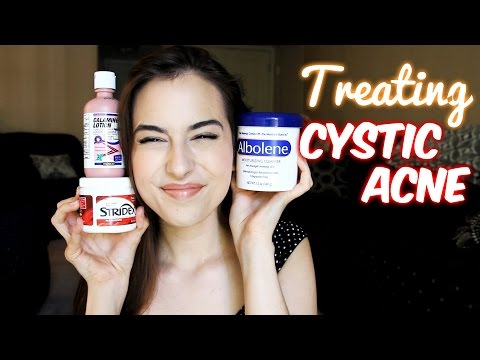 Cystic Acne: 3 Affordable Treatments