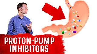 The Acid Suppressing Proton Pump Inhibitors (PPIs) Effect on Your Entire Body