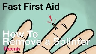 How To Remove a Splinter | Fast First Aid | Parents