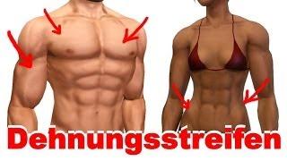 Dehnungsstreifen durch schnellen Muskelaufbau