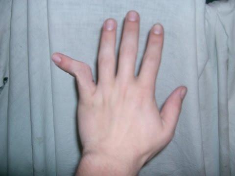 Перелом пальца руки и фаланги пальца руки. Лечение и