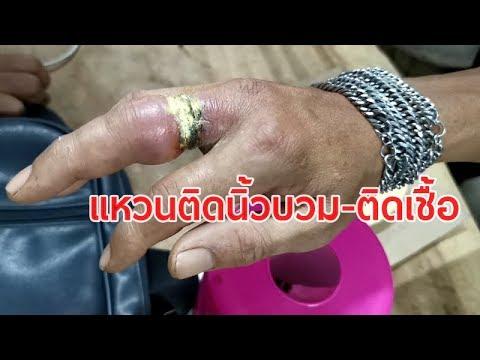 ชายวัย 40 แหวนติดนิ้วบวม-ติดเชื้อ ร้องกู้ภัยช่วย