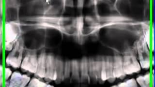 Gambar cover Panoramic X-rays radiografia panoramica para diagnostico dental advance clinica aimone diego