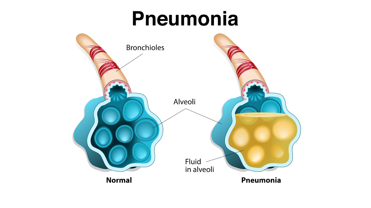 respiratory sickness from simple to serious youtube simple pneumonia diagram [ 1280 x 720 Pixel ]