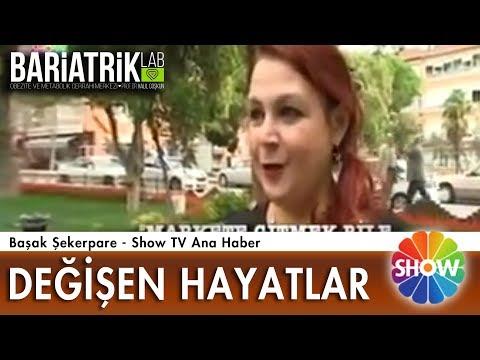 Gastrik Bypass Ameliyatı Başarı Hikayesi / Show TV / Prof. Dr. Halil Coşkun