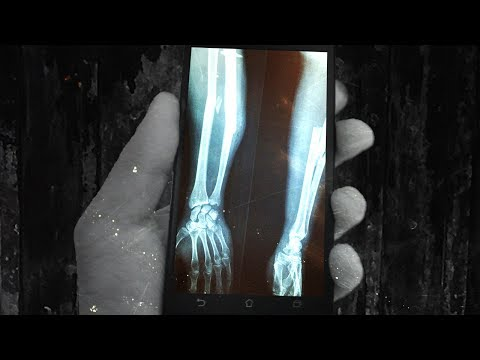Smart Phones Will Send Data THROUGH YOUR BONES Next