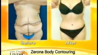 San Diego Weight Loss using the new Zerona Laser Treatment