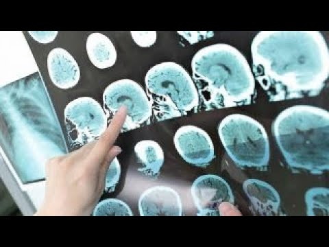 Download Youtube: What is multiple sclerosis?