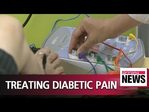 Electroacupuncture effective in treating painful diabetic peripheral neuropathy