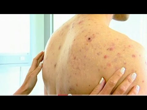 Of Back Fast How Acne Get Overnight Rid To