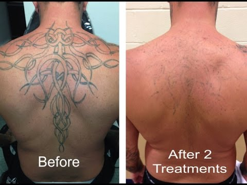 Laserless Tattoo Removal Review + 6 FREE Bonuses - YouTube