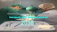 Surgery Life Enhancement - YouTube