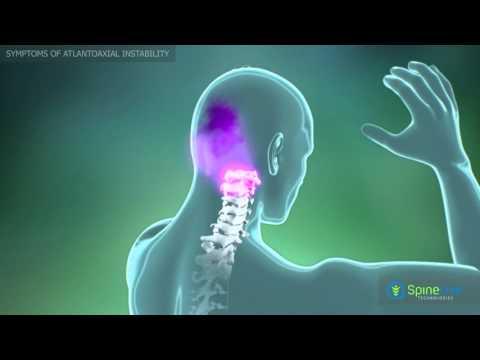 Atlantoaxial Instability. Symptoms