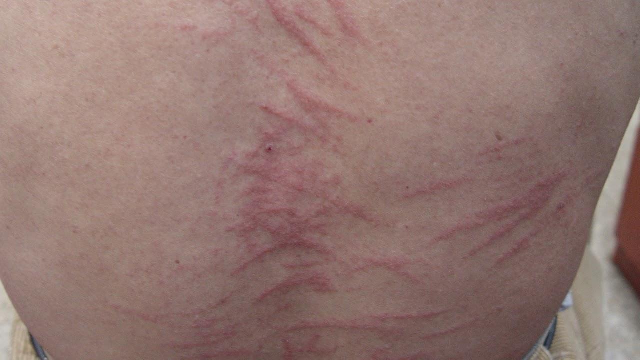 표고버섯피부염 (Shiitake dermatitis) 증례 - 청주 메어리벳