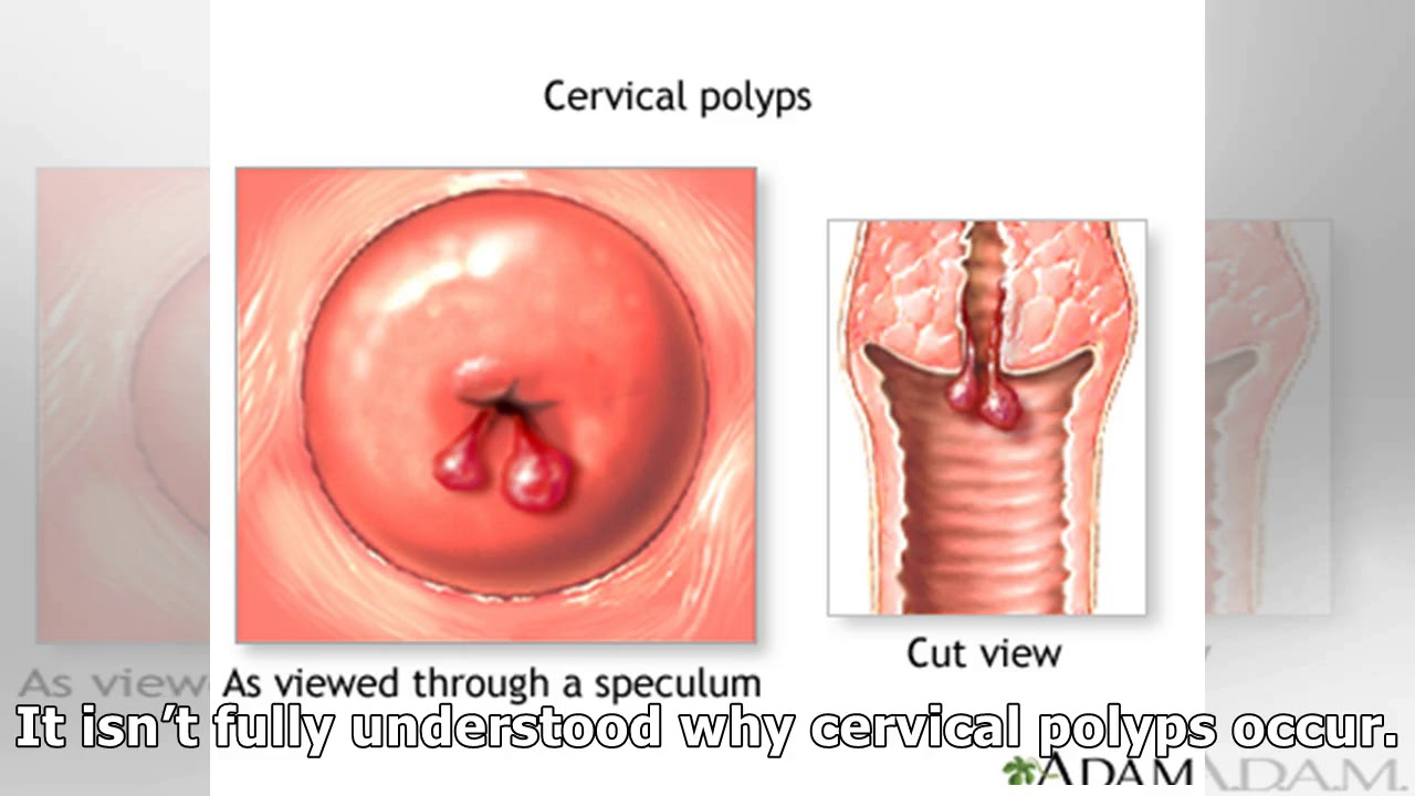Ways to identify and eliminate polyps in the cervix