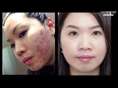 NeoGen Plasma for Acne by Cambridge Therapeutics - Calvy Ling