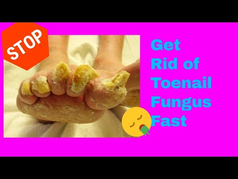 "They Call It "" The toenail fungus killer"" How To Kill Toenail Fungus Fast"