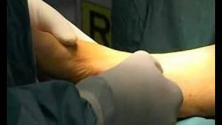 caviglia: riparazione lesioni osteocondrali(Tecnica utilizzata per riparare lesioni osteocondrali dell'astragalo. Uso di cellule cartilaginee autologhe da coltura cellulare, a partire da prelievo di frammenti di ..., 2008-03-11T19:09:35.000Z)