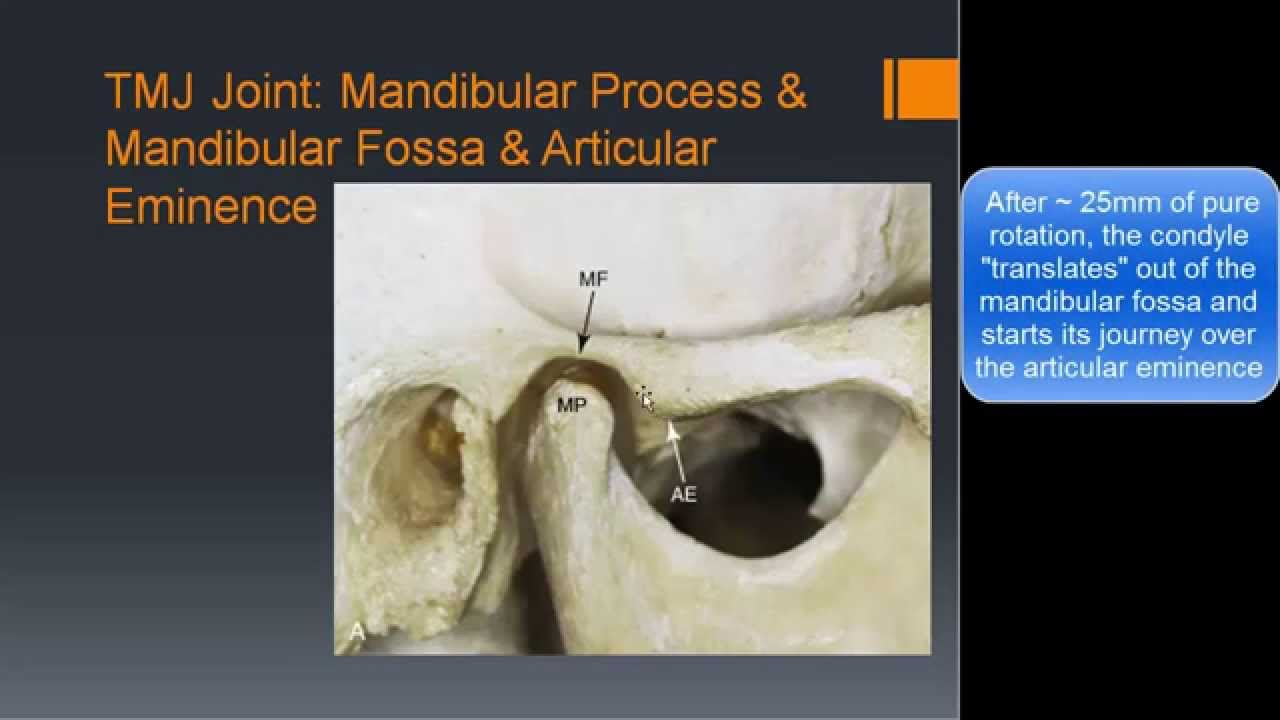 Tmj Basic Anatomy Biomechanics Youtube