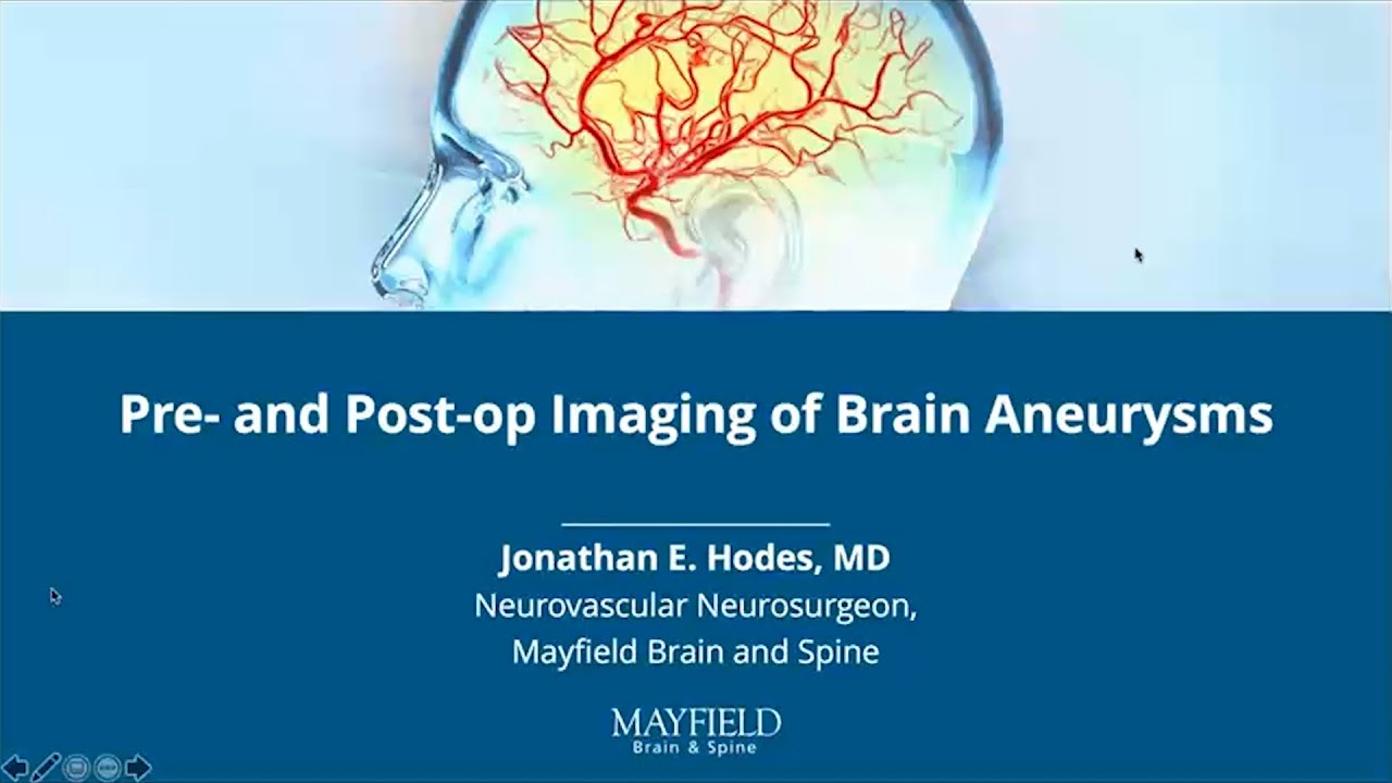 Pre- and Post-op Imaging of Brain Aneurysms w/ Dr. Jonathan Hodes