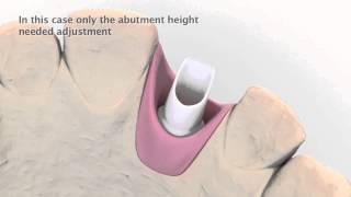Astra Tech Implant System laboratory procedure