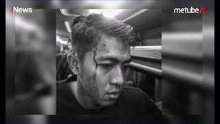 Bus Dilempari Batu di Tol Jagorawi, 2 Pemain Persib Bandung Terluka - Police Line 15/09