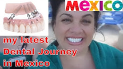 WARNING GRAPHIC My Latest Dental Journey in Mexico | All on 4 | Snap in Dentures 2018