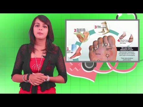 Athlete's Foot – Know About Your Disease In Less Than 1 Min