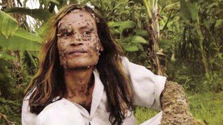 Top 10 People Who Suffer Very Rare Conditions