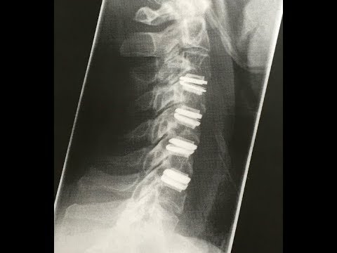 TWENTY FOUR MONTH UPDATE - My 4 level cervical artificial ...