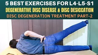 5 Exercises- Lumbar Disc Degeneration, Disc Desiccation, Degenerative Disc Disease Treatment- Part 2