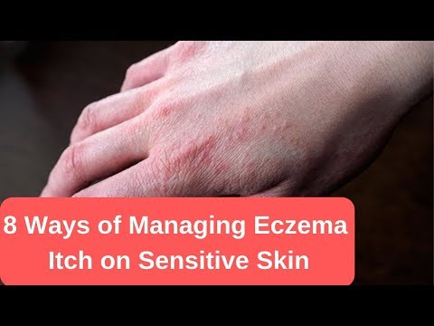 8 Ways of Managing Eczema Itch on Sensitive Skin