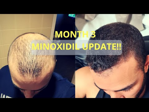 month-3-rogaine-results-(minoxidil)---regrowth?!