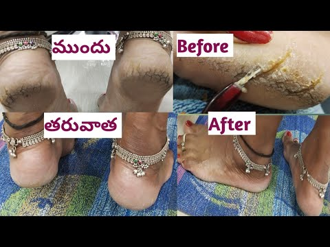 How to do pedicure in parlour style