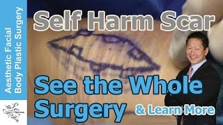 Video Self Harm Scars - See The Wound Double in Size & Learn About the Whole Surgery #scar #plasticsurgery download MP3, 3GP, MP4, WEBM, AVI, FLV September 2018