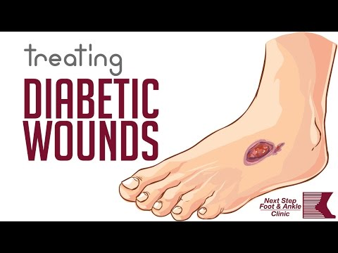 Treating Painful Diabetic Wounds and Ulcers