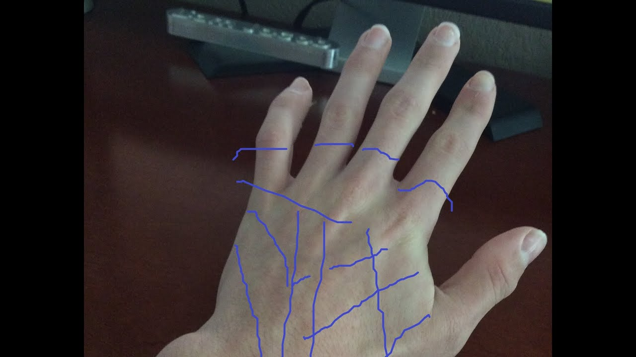 How To Temporarily Remove Veins In Hand Youtube