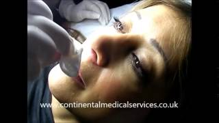 Continental Thermavein   Instant thread vein removal