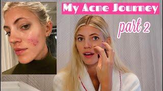 My Acne Journey | Tips | Clearing My Skin | Part 2 | Devon Windsor