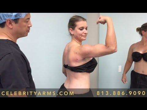 Liposuction Plastic Surgery Experts Tampa, St  Pete Florida