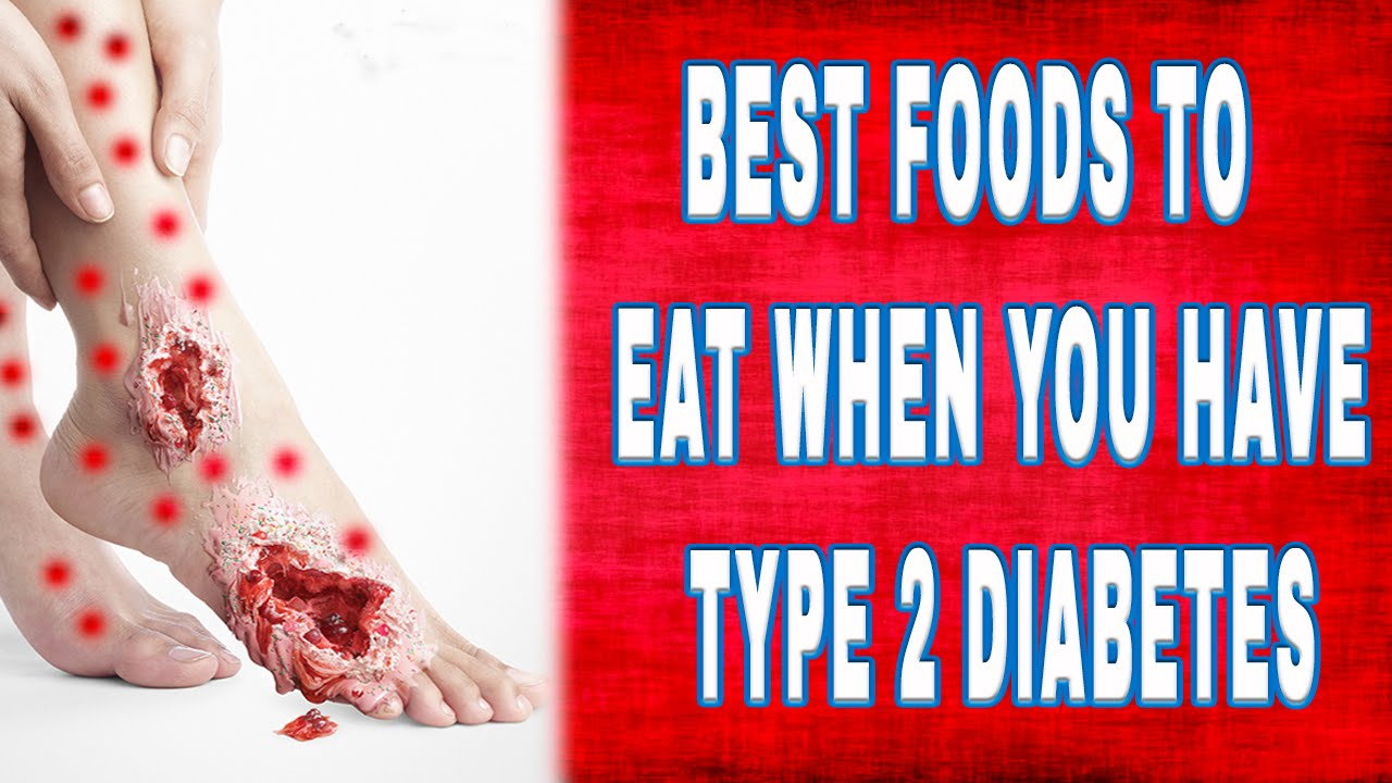 Best Foods To Eat When You Have Type 2 Diabetes Youtube