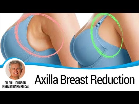 "Axilla Breast Reduction ""Tank Toppers"" - Arm Liposuction"