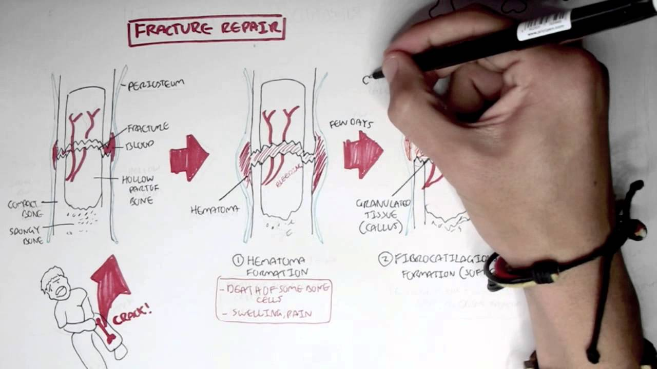 Bone Fracture Types Fracture Repair And Osteomyelitis Youtube