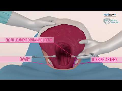 How to perform a caesarean section and deliver babies in different positions at caesarean section