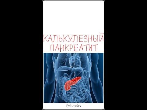 Калькулезный панкреатит